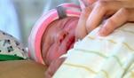 Mandys Zwillinge mussten per Kaiserschnitt geholt werden, weil eines der Babys in...
